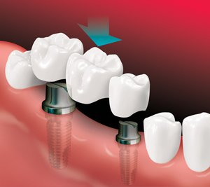implants being placed on missing teeth location
