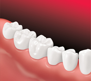 image of perfect teeth after implants