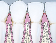 Drawing of a teeth and gums being surrounded by plaque