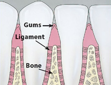 Drawing portraying healthy gums without plaque
