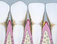 Drawing of gums with Periodontitis disease