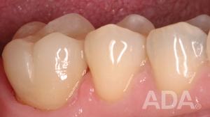 Teeth after a crown