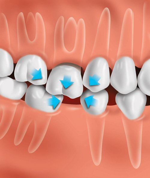 image of teeth moving out of place