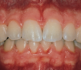 Smiling mouth with ginigivitis
