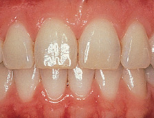Image of Healthy gums and teeth