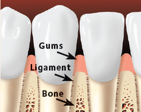 Gums, ligaments, and bone