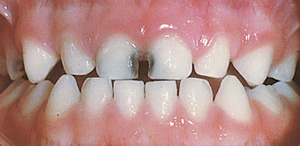 Moderate/Severe decayed teeth