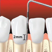 Periodontal probe of healthy gums.