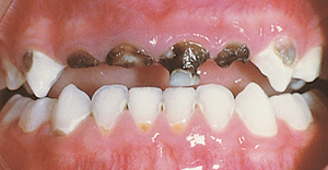 Severe decayed teeth