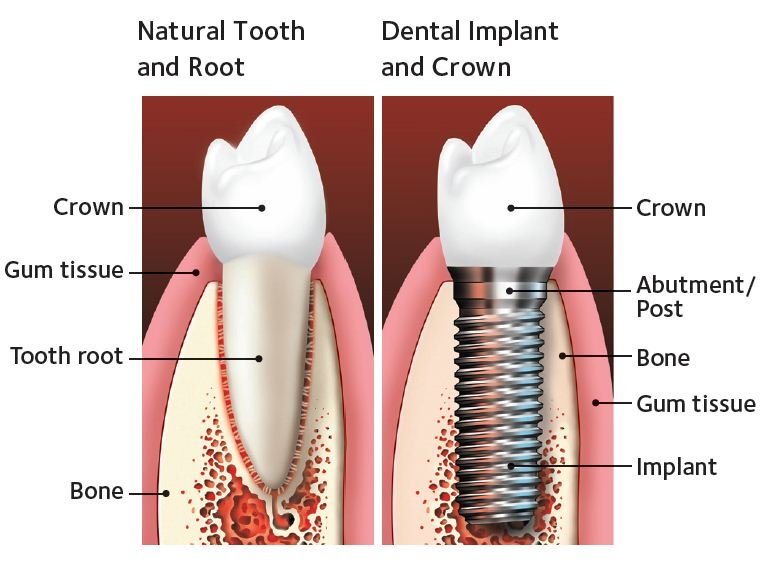 natural tooth side by side a dental implant