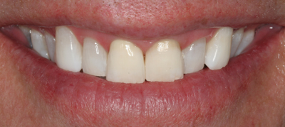 White teeth after tooth whitening