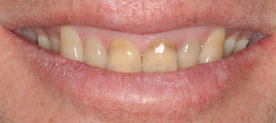Brown discolored teeth before photo