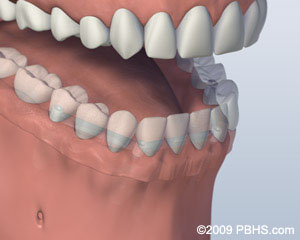 A mouth with a Bar Attachment Denture secured onto the lower jaw by four implants