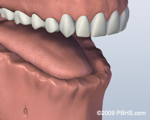 A mouth that has all lower jaw teeth missing
