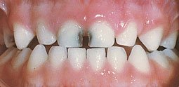 An example of decay in baby teeth