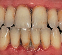 Black and Unhealthy gums