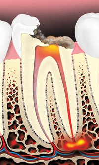 tooth decay caused by an infection