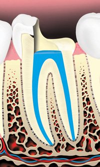 Image of root canals being filled