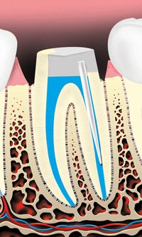 Image of a plast rod being placed inside the tooth