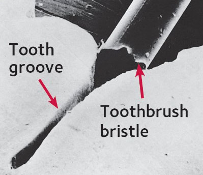 A depiction of how the brush bristle cannot reach inside a groove